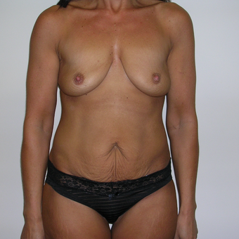 45-54 year old woman treated with Breast Lift with Implants before 3617669