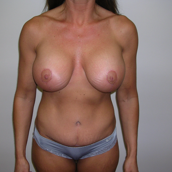 45-54 year old woman treated with Breast Lift with Implants after 3617669