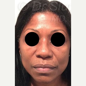 45-54 year old woman treated with Revision Rhinoplasty before 3788055