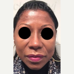 45-54 year old woman treated with Revision Rhinoplasty after 3788055