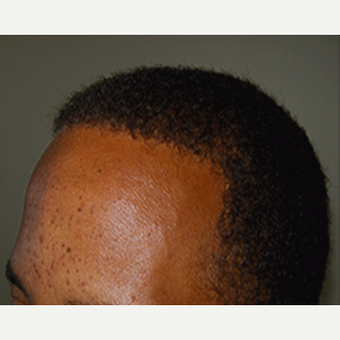 35-44  year old African American man treated with Hair Transplant after 3420693