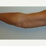 45-54 year old woman treated with Arm Lift after 3092909