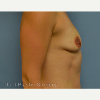 25-34 year old woman treated with Breast Augmentation before 3342163