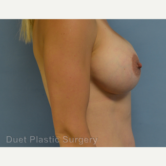 25-34 year old woman treated with Breast Augmentation after 3342163