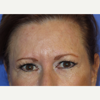 64 year old feman treated with Temporal Brow Lift before 3341097