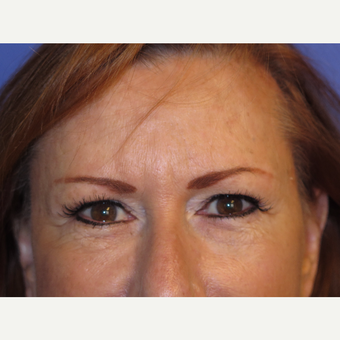 64 year old feman treated with Temporal Brow Lift after 3341097