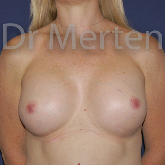 25-34 year old woman treated with Breast Implant Revision after 3829830