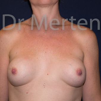 25-34 year old woman treated with Breast Implant Revision before 3829830