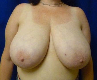 42 Year Old Breast Reduction before 1284490