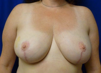 42 Year Old Breast Reduction after 1284490