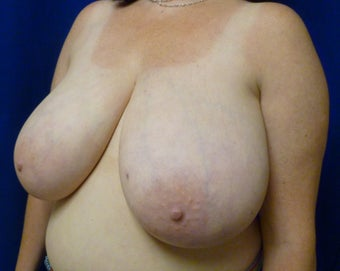 42 Year Old Breast Reduction 1284490