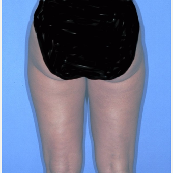 Liposuction after 3345988