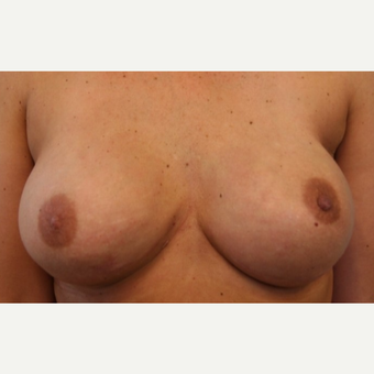 41 year old woman with bilateral nipple sparring mastectomies with  immediate implant placement after 3042388