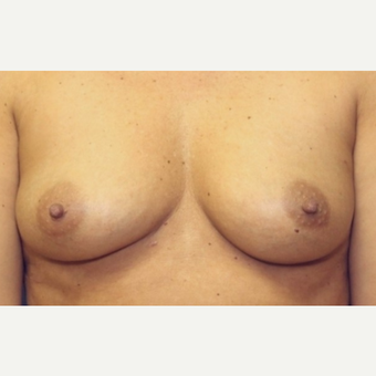 41 year old woman with bilateral nipple sparring mastectomies with  immediate implant placement before 3042388