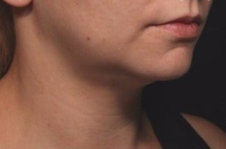 35-44 year old woman treated with Kybella after 1844569