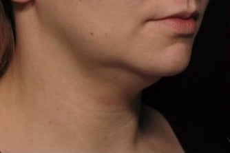 35-44 year old woman treated with Kybella before 1844569