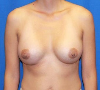 Breast Implants after 986889