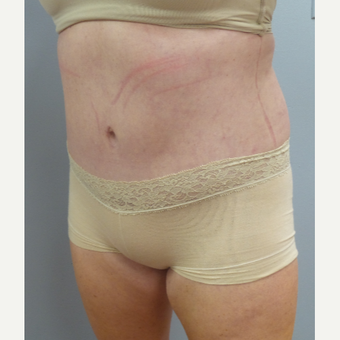 35-44 year old woman treated with Tummy Tuck after 3482525