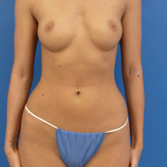 25-34 year old woman treated with Breast Augmentation before 3782691