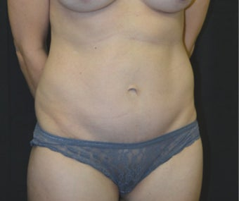 35-44 year old woman treated with Tummy Tuck after 3181820
