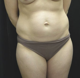 35-44 year old woman treated with Tummy Tuck before 3181820