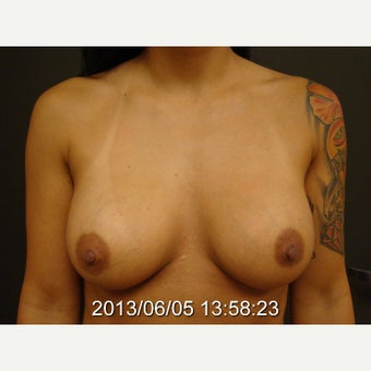 Removal of Saline Implants and Replacement with Larger Silicone Gel Implants before 1705796