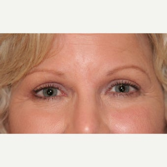 55-64 year old woman treated with Eyelid Surgery after 1817908