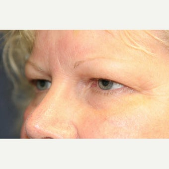 55-64 year old woman treated with Eyelid Surgery 1817908
