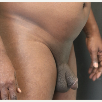 35-44 year old man treated with Penis Enlargement before 3413650
