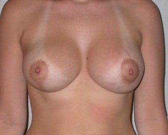 Breast Asymmetry Correction after 281328