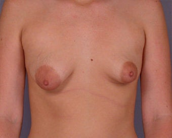 Breast Asymmetry Correction before 281328