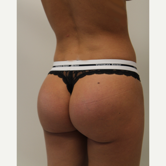 25-34 year old woman treated with Butt Implants after 3800343