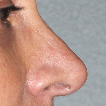 35-44 year old woman treated with Rhinoplasty after 3224001