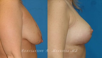 Breast Lift before 1161867