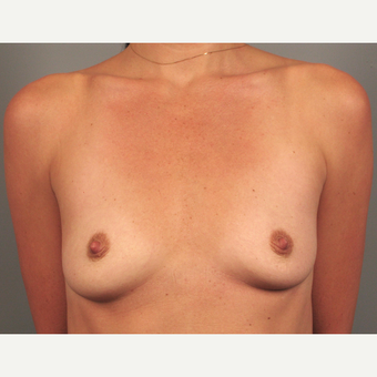 25-34 year old woman treated with Endo-Axillary Breast Augmentation before 3258313