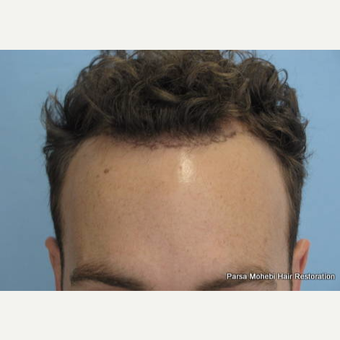 FUE Hair Transplant by Dr. Parsa Mohebi before 3176218