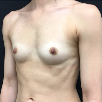 25-34 year old woman treated with Breast Augmentation before 3493970
