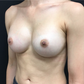25-34 year old woman treated with Breast Augmentation after 3493970