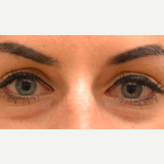25-34 year old woman treated with Injectable Fillers before 2874629