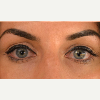 25-34 year old woman treated with Injectable Fillers after 2874629