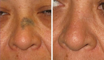 Mole Removal photos before 951879