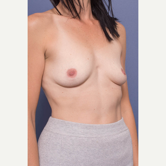 35-44 year old woman treated with Breast Augmentation before 3734953