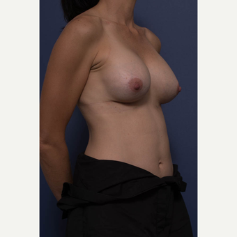 35-44 year old woman treated with Breast Augmentation after 3734953