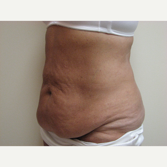 Tummy Tuck before 3301352