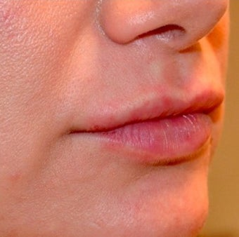35-44 year old woman treated with Lip Augmentation after 2165295