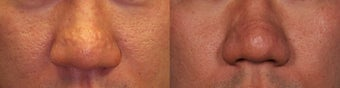 Sebaceous Hyperplasia Acne Scars Before and After before 1039837