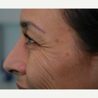 Dysport® treatment on crows feet to diminish fine lines before 3292555