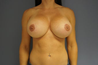 26yo Breast Augmentation Revision after 989573