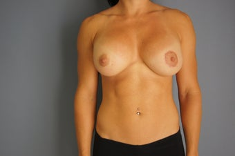 26yo Breast Augmentation Revision before 989573