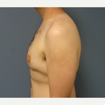 18-24 year old man treated with Male Breast Reduction before 3747207